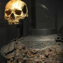 Какие травмы получали воины в Средние века?