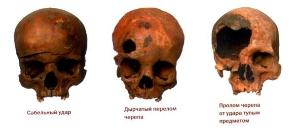 Виды травм в средние века от монголов