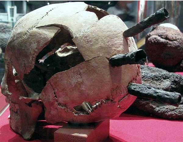 Виды травм в средние века_Стрелы